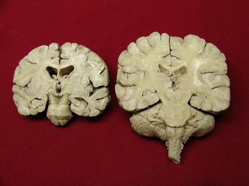 Мозги Ленина в срезе